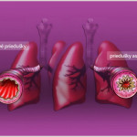 Astma-1