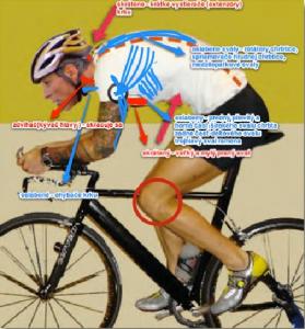 Cyklistika je šport dosiahnuteľný pre všetkých. Ale ako vidíte na obrázku pri nedostatočnej kompenzácii si môžete viac ublížiť v podobe rôznych svalových dysbalancí (nerovnováhy) ako pomôcť . V červenom krúžku sú vyznačené miesta bolesti na vonkajšej  a vnútornej strane kolena.