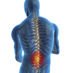 Bolesti chrbta-1